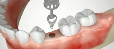 Dantų implantų kainos