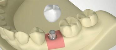 Dantų implantacija